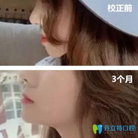 去杭州拜博口腔做地包天矫正前后脸型变化图展示