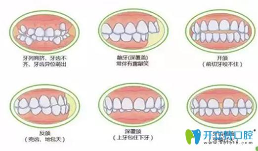 深度揭秘:在做牙齿矫正之前,你不得不了解的17个问题