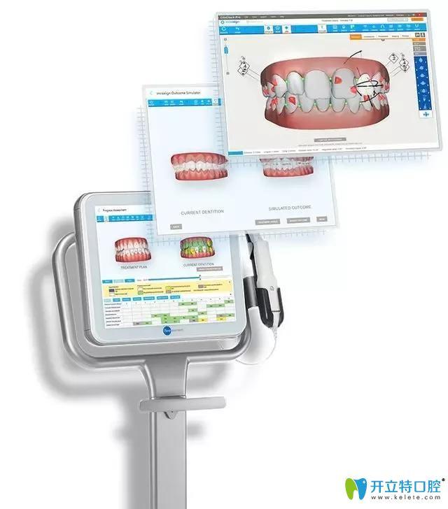 隐适美itero口内扫描仪 黑科技PK传统牙科石膏取模