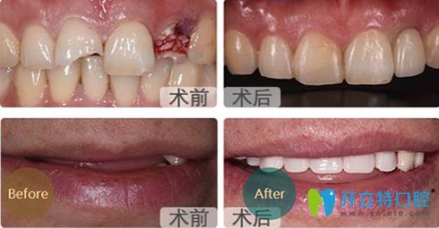成都亚非口腔种植牙前后效果对比图