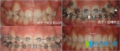 西安高陵康洁口腔金属托槽牙齿矫正案例图