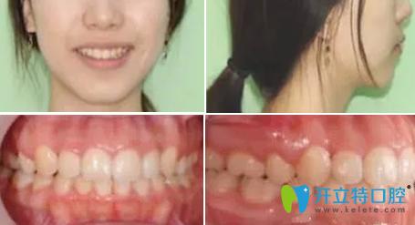 成都亚非牙科_记录李女士26岁在成都亚非口腔做牙齿矫正的前后对比照片 - 成都 ...