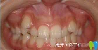 分享我在西安康洁口腔佩戴金属托槽牙齿矫正两年来的体验