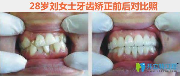 杭州萧山至恒成年人牙齿矫正前后对比效果