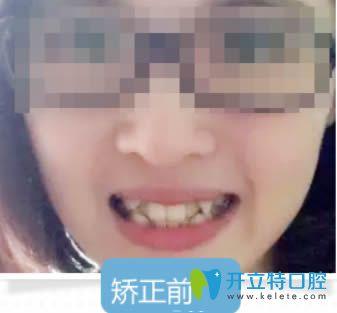 谁说26岁就没必要矫正牙齿了?来看深圳拜尔成年人正畸案例