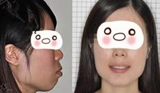 牙套毕业 分享在广州圣贝口腔拔5颗牙做正畸2年半来的体验