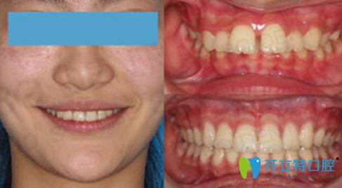 昆明拜博口腔牙齿隐形矫正前后对比图展示