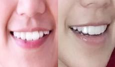 成人隐形正畸案例告诉你昆明拜博口腔牙齿矫正怎么样