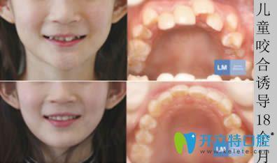 成都茁悦口腔李文星医生牙齿矫正图