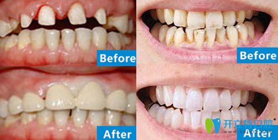 北极星口腔牙齿瓷贴面+牙齿冷光美白案例