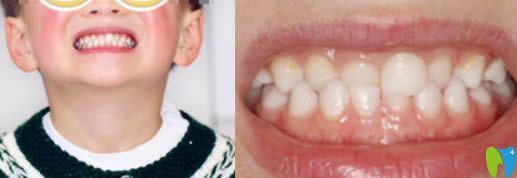 6岁孩子换牙期做牙齿正畸 成都茁悦口腔成功矫正了咬合错位