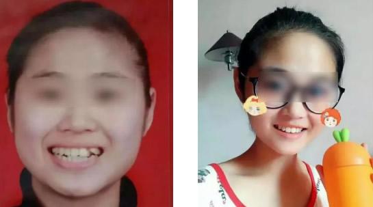 天津美奥口腔戴隐形牙套矫正牙齿560天后 和龅牙凸嘴拜拜了