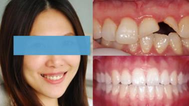 长沙拜博口腔怎么样 用种植牙/正畸/烤瓷牙修复效果来回答
