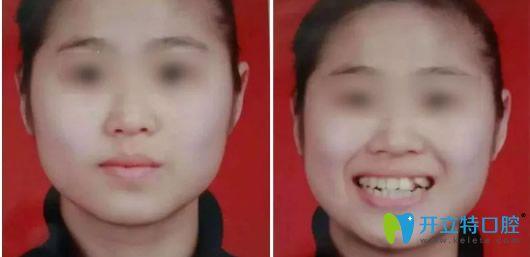 天津美奥口腔隐形矫正牙齿前