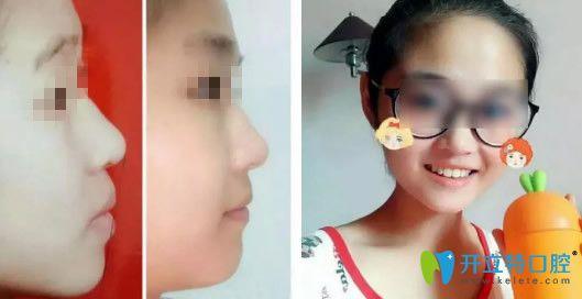 美奥口腔隐形矫正牙齿18个月后的效果