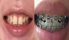 30岁在无锡北极星口腔矫正牙齿第79天前后对比照片 努力中