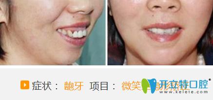 聊城哪家医院牙齿正畸好?看聊城口腔微笑全隐形牙齿矫正案例对比图