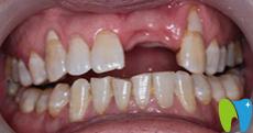 泰州口腔哪家好 分享在北极星口腔做即刻种植牙的经历