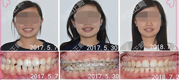 北京康圆口腔矫正牙齿怎么样 看我的大牙缝是如何变小的