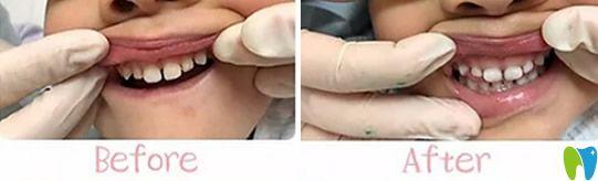 北京青苗儿童口腔好不好?不妨看看孩子牙齿矫正案例效果