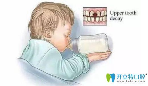儿童奶瓶齿龋怎么治疗?如何避免儿童奶瓶龋?准妈妈必看宝典