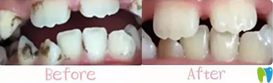 北京青苗儿童口腔龋齿治疗前后对比效果