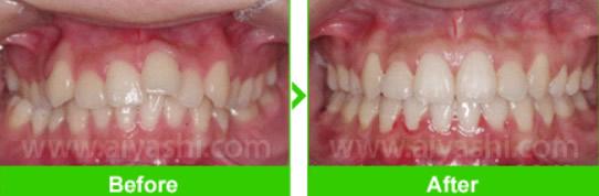 龅牙齿怎么矫正 北京爱雅仕口腔正畸前后对比图及方法汇总