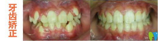 杭州美奥儿童牙齿矫正前后对比效果