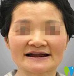 牙友称在宁波牙博士口腔做即刻种植牙价格实惠