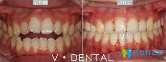 维恩口腔前牙开合矫正案例