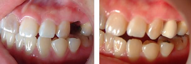 大牙缺失10年不想做烤瓷牙怎么办 来北京爵冠口腔种植牙齿