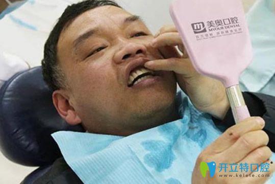 穿颧种植牙槽骨严重萎缩患者迎来曙光