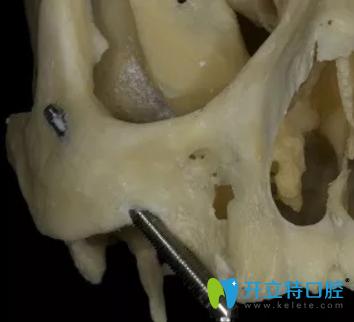 2穿上颌路径的颧种植体示意图