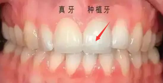 北京种植牙齿哪家好疼不疼 这是我在齿康口腔种门牙的经历