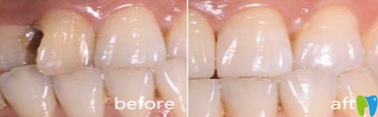 牙齿修复案例对比图