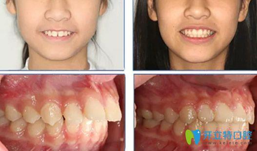 龅牙矫正必须拔牙吗?看北京维恩口腔杨占娟儿童正畸案例