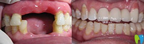 门牙缺失怎么办?70岁赵阿姨在北京维乐口腔做了微创种植牙