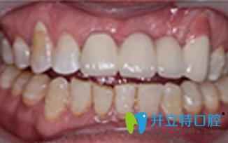 北京维乐口腔种植牙后照片