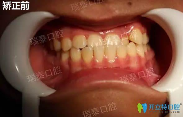 我了解过青岛口腔医院的价目表后,去瑞泰口腔做了隐形矫正
