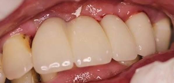 看多颗牙缺失的刘妈 在无锡佳士洁口腔微创种牙后的变化