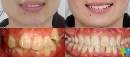 北京斯迈尔齿科怎么样?看牙齿不齐和龅牙矫正对比效果图