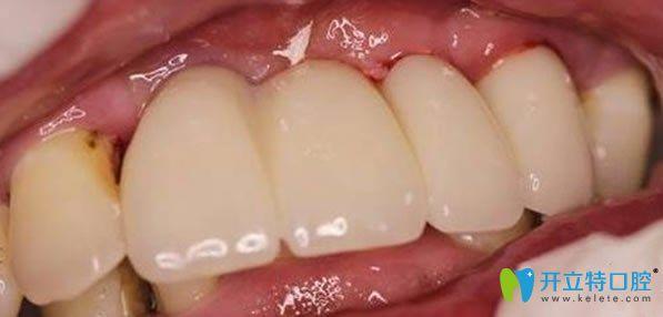 佳士洁口腔多颗牙缺失微创无痛种植牙术后效果图