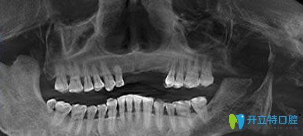 佳士洁口腔种植牙3D检查图片