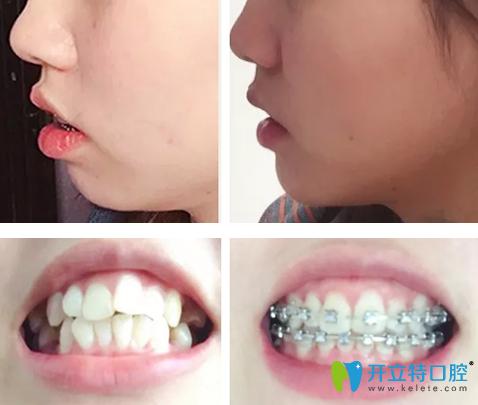 龅牙怎么矫正?晒泰安光彩口腔钢丝矫正龅牙1-10个月变化图