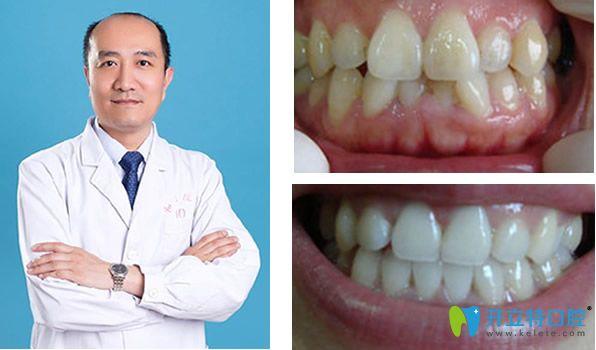 李向飞医生和他矫正牙齿前后效果对比照