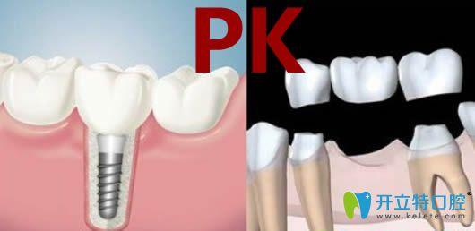 关于种牙好还是镶牙好?请看价格/寿命/优势三方面大比拼