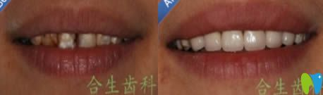 氟斑牙怎么去除?治疗氟斑牙的美白修复方法具体有哪些