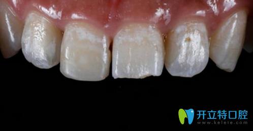 门牙断裂怎么修复?看孙周口腔为顾客做树脂填充修复全过程