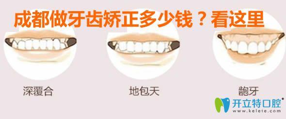成都做牙齿矫正多少钱?看时代天使/隐适美/正雅牙套价格表