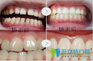 青岛元美口腔牙齿正畸效果对比图